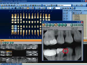 Teeth screenshot